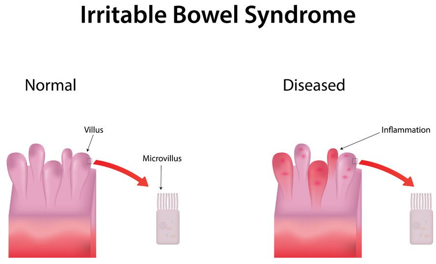 Mucus In Stool: What Does It Mean and Should I Be Concerned?