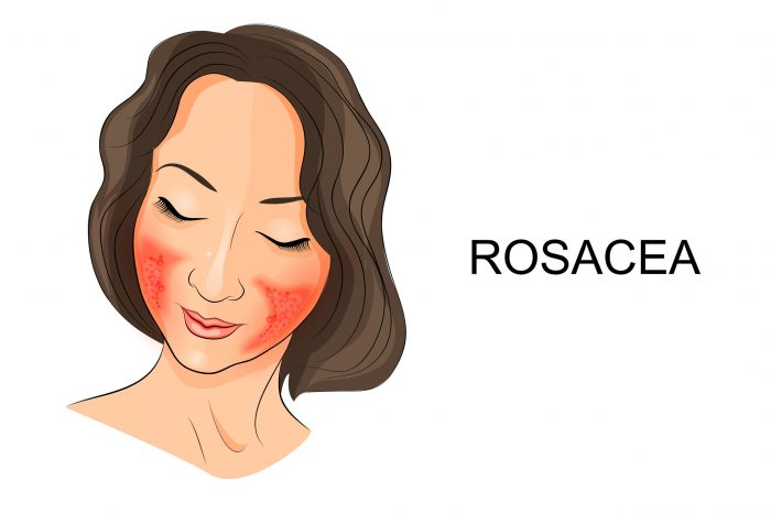 How To Use Soothing Coconut Oil For Rosacea (and does it work?)
