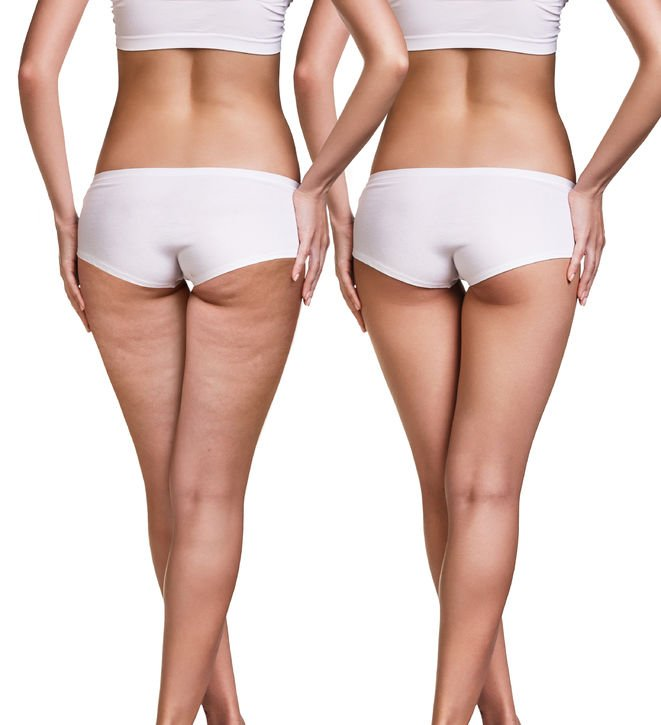 Rid of Cellulite | Nucific