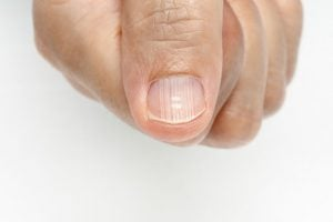 Fingernail Health | Nucific