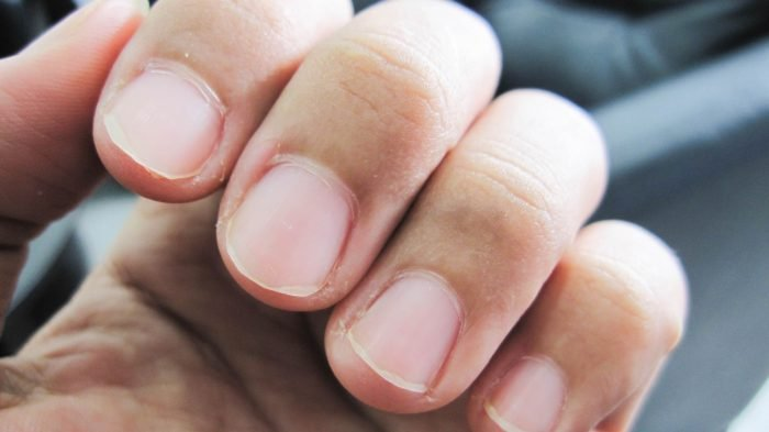The Surprising Things Your Fingernails Say About Your Health