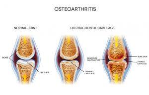 osteoarthritis | Nucific