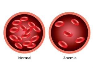 graphic of normal blood and anemic blood