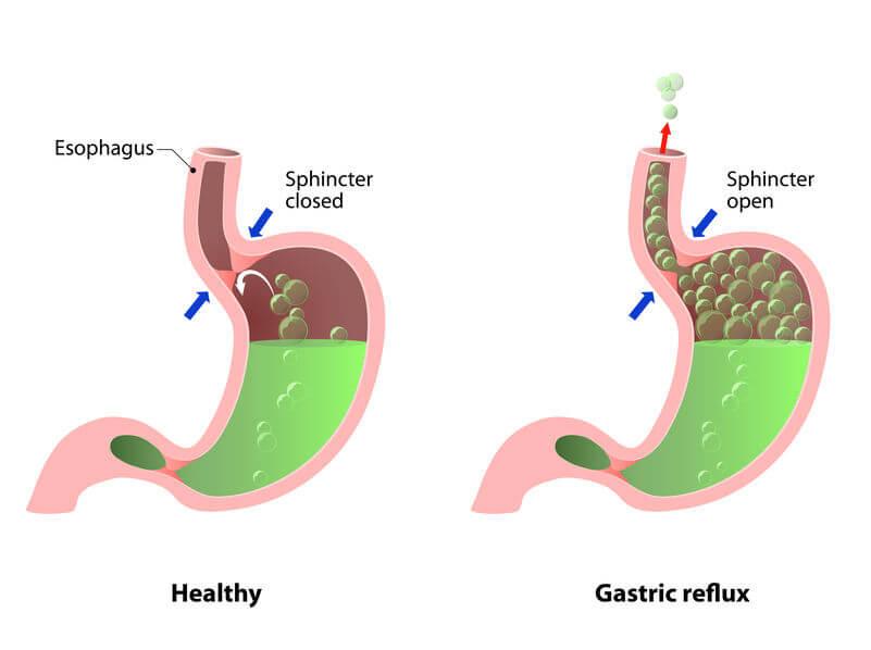 acid reflux trigger foods | Nucific