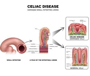 celiac disease graphic | Nucific