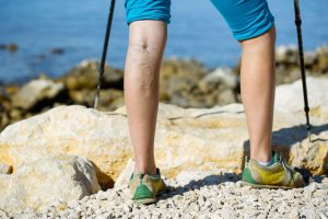varicose veins | Nucific
